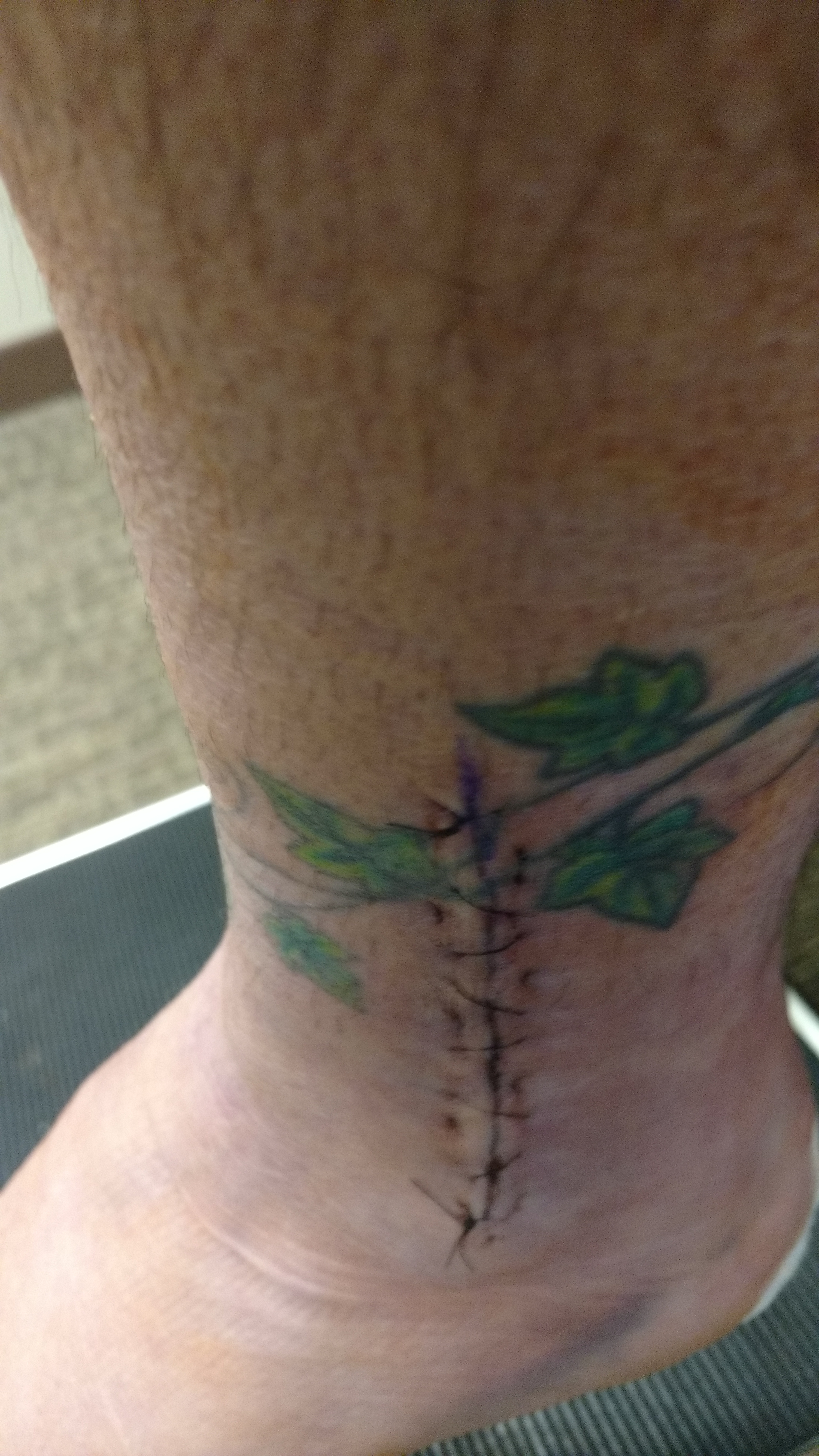 left ankle surgical site with stitches